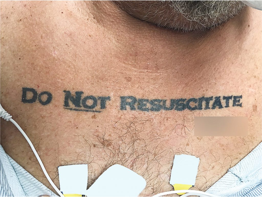 Man with DNR Tattoo Presented Physicians with Unique Dilemma